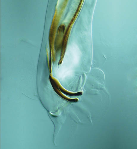 Lung nematode. Photo: Eric Hoberg
